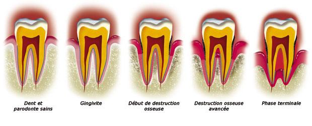 le d chaussement des dents dr rose marie sanchez chirurgien dentiste. Black Bedroom Furniture Sets. Home Design Ideas