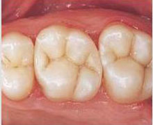 soins-dent6