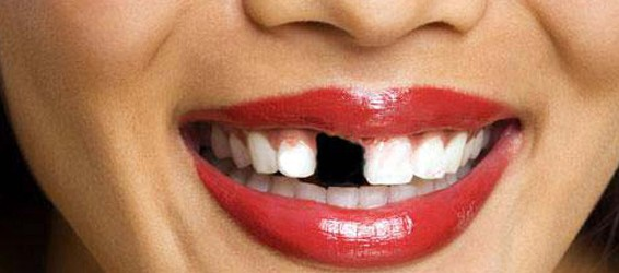 remplacement-dent