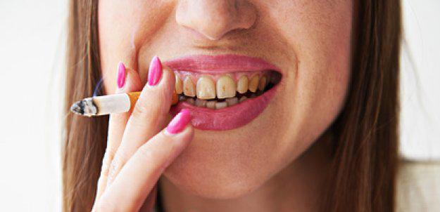 blanchiment des dents effets secondaires